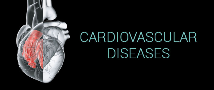 Heart Diseases: Prevention and Treatment