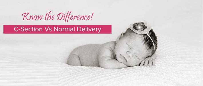 Normal delivery Vs C section