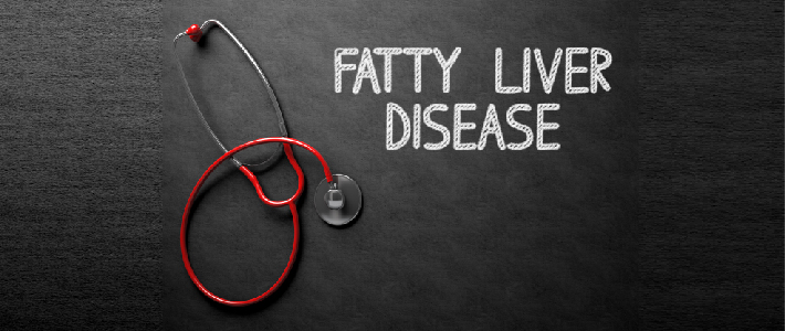 Fatty liver disease: Causes and symptoms
