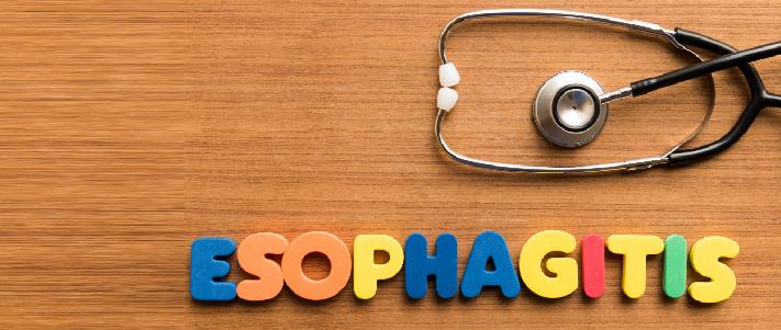Signs symptoms treatment for esophagitis