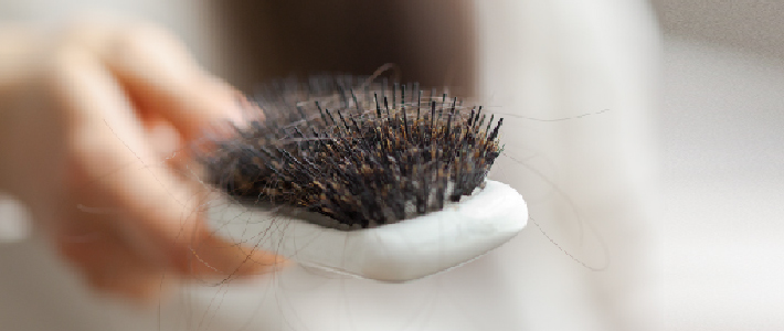 Tips to prevent hairfall